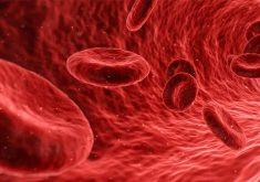 About-Peripheral-Artery-Disease-You-Need-To-Know